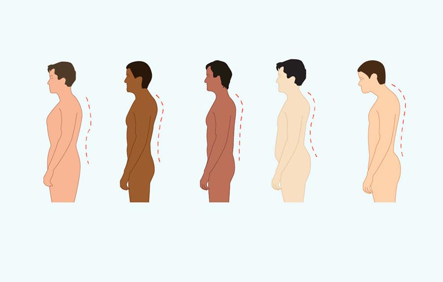 تغییر وضعیت بدن در بیماران پارکینسون