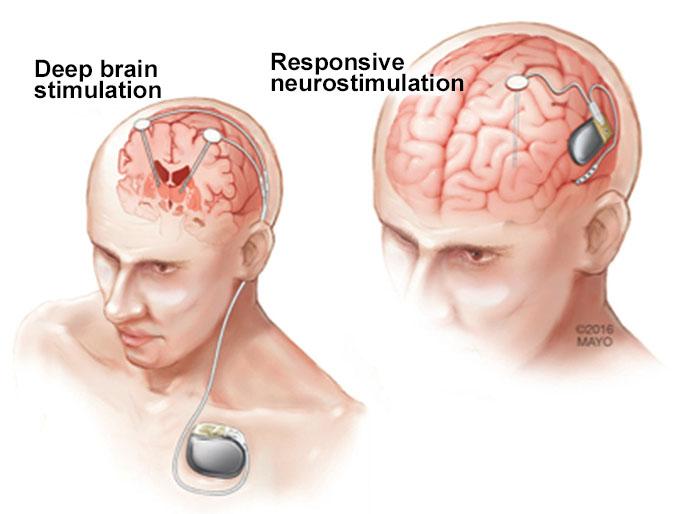 تحریک عمیق مغز (DBS)