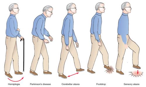 راه رفتن بیماران پارکینسون