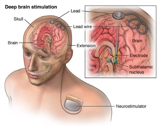 تحریک عمقی مغز
