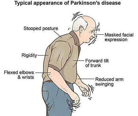 علاعم بیماران پارکینسون